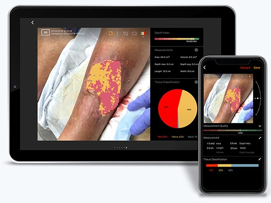 Advanced Wound Imaging and Measurement by eKare's Insight 3D wound imaging and assessment